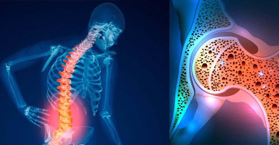 درمان پوکی استخوان با تغذیه مناسب