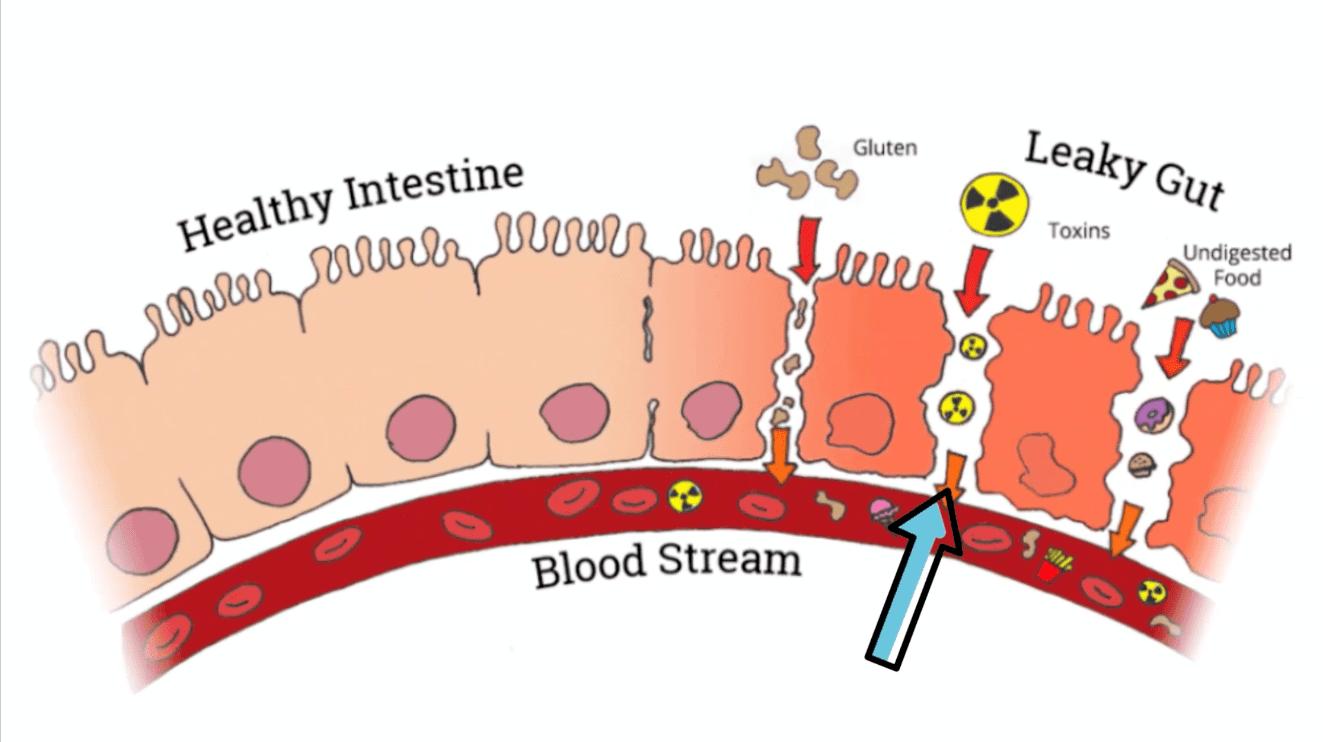 سندروم روده تحریک پذیر چیست و چه ربطی به گلوتن دارد؟